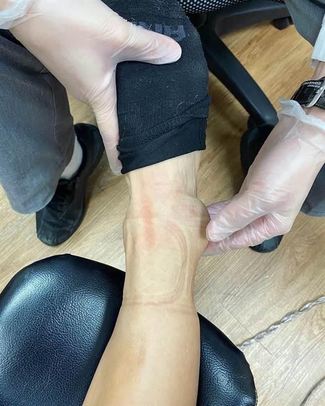 胡宇威腳踝腫出一顆棒球般大小。(摘自臉書)