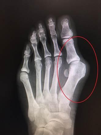 大拇指外翻家族遺傳機率高 最嚴重恐截肢