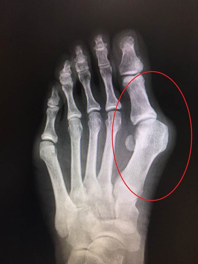 邱女士大拇指外翻43度(紅圈處),造成內外側嚴重疼痛、無法久站。(大千醫院提供/巫靜婷苗栗傳真)