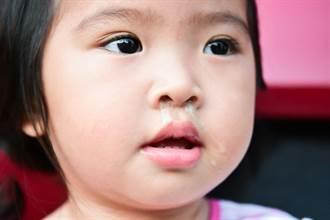 咳嗽、流鼻水跟感冒怎麼分? 醫警告6種狀況得嚴防併發症