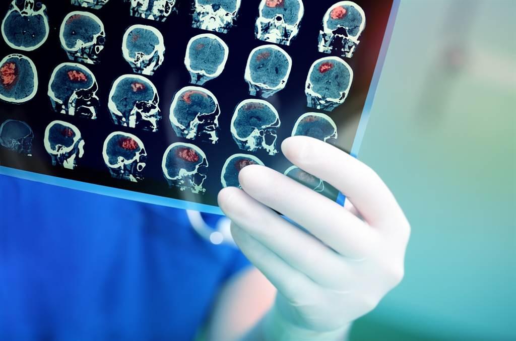 腦中風是造成台灣人死亡或殘障的重要病因。北榮研究團隊找到特有的腦中風突變基因變。此為示意圖。(達志影像/shutterstock)