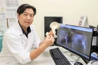 微創人工關節搭配雞尾酒止痛療法 膝蓋彎曲效果好