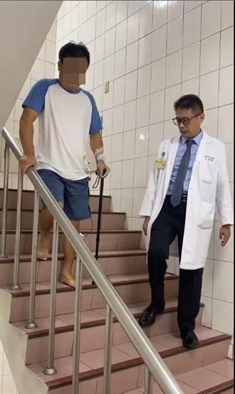 幼時運動傷及髖關節未治癒 導致長年跛腳成長短腳