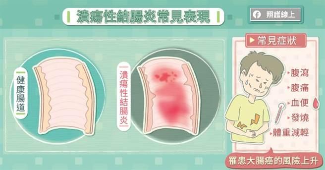 長期腹瀉血便,是潰瘍性結腸炎的症狀之一。(圖/照護線上提供)