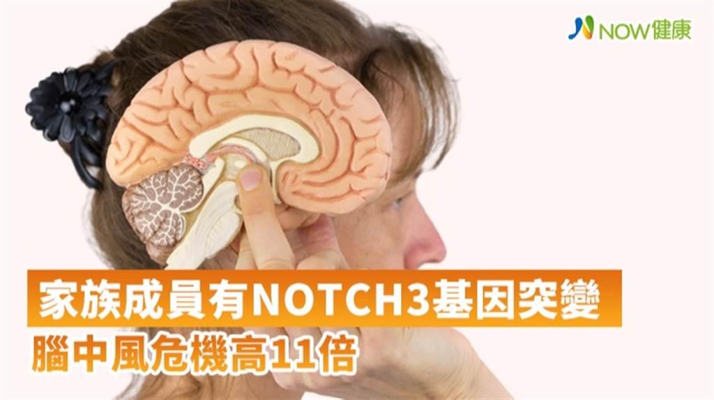 台北榮總找出NOTCH3基因破解腦中風基因遺傳之謎,研究團隊發現在NOTCH3基因上的R544C突變是台灣人特有的腦中風基因突變。(圖/NOW健康製作提供)