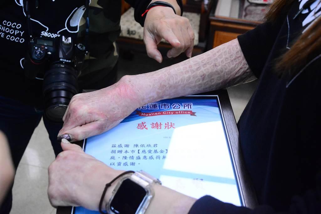 陳依欣全身燒燙傷面積達70%,手上還有燒燙傷治療的疤痕。(王志偉攝)