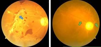 視力悄悄衰退 檢查驚現視網膜出血