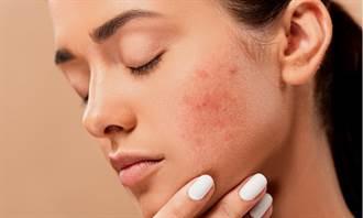 健保有條件給付生物製劑 難纏的異位性皮膚炎治療現曙光