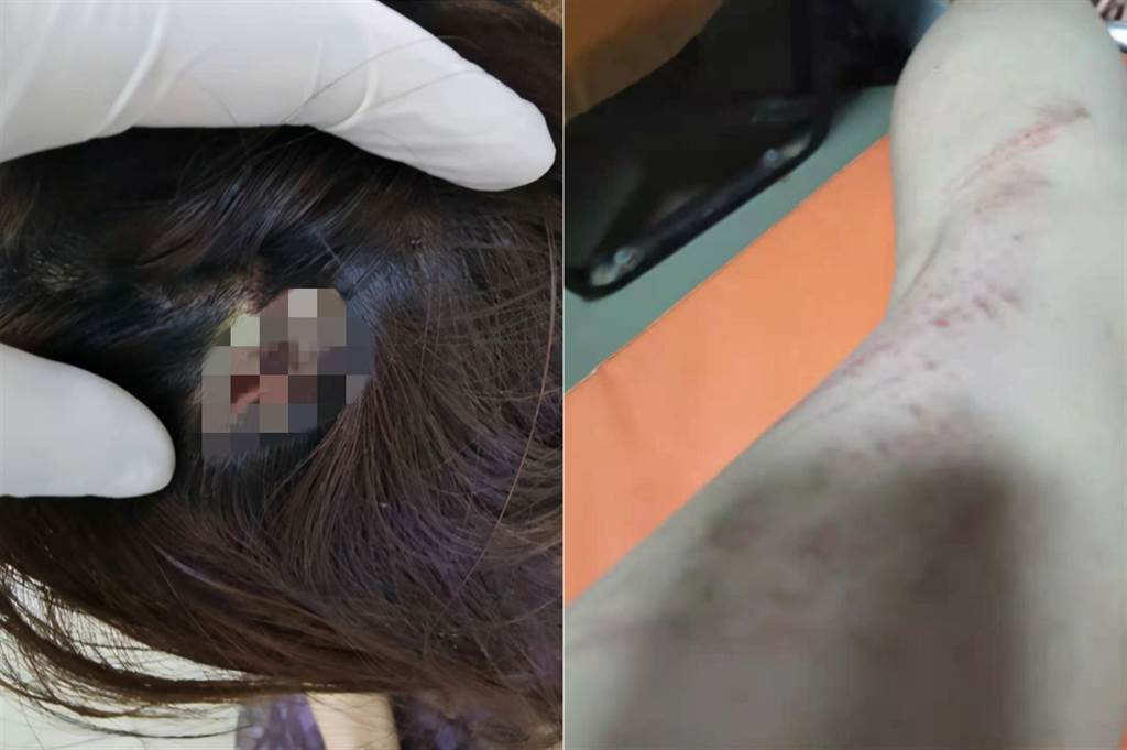 鄭女稱被對方妻子用ipad砸傷頭(圖片取自/網易新聞)