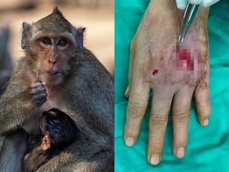 壽山動物園20隻獼猴暴動搶食 女子左手肌腱遭抓斷傷口爆血