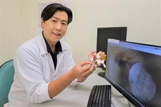 神經阻斷術、脈衝射頻及脊椎微創手術「三合一」有效治療坐骨神經痛
