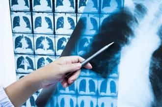 無聲殺手肺腺癌 4種人容易得!死亡率高