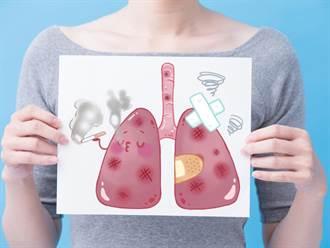 肺癌早期症狀不明顯 醫師:出現8大症狀應盡速就醫