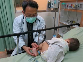 男嬰膝蓋長細小疹子 腸病毒冬天悄悄來