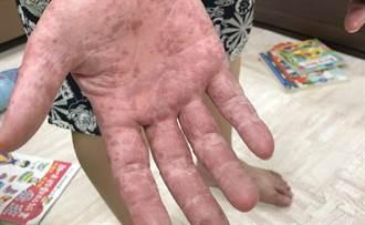 照顧腸病毒愛女 暖爸忘洗手抽菸後中鏢