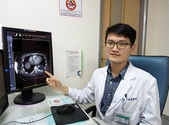 非高風險族群竟2度確診膿胸 微創手術治療康復