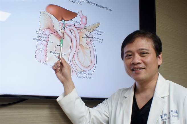 中國醫藥大學附設醫院國際代謝形體醫學中心院長黃致錕提醒,BMI值大於30的代謝症候群患者因心血管猝死風險是正常人的三倍。(馮惠宜攝)