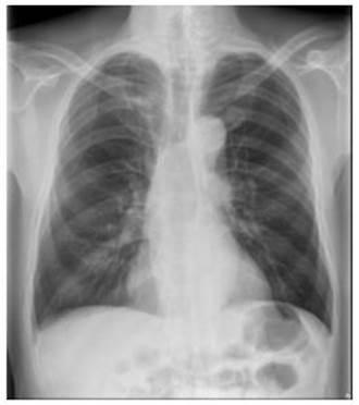 4年4次X光檢查無恙 電腦斷層發現肺癌