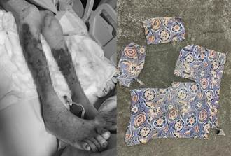 92歲嬤慘遭成群野狗撕咬 雙腿全爛昏迷老伴墳前2小時