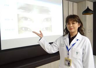 眼睛時有異物感、頻眨眼 醫:當心眼瞼內翻