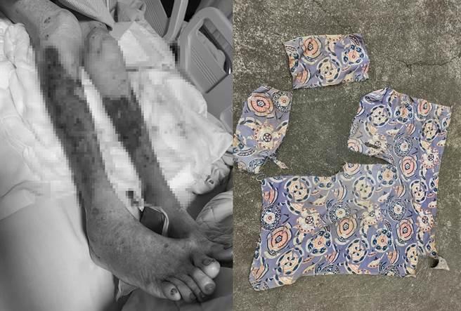 台南一位92歲高齡阿嬤2日在自家農田遭成群野狗撕咬,當時披著的頭巾則被撕咬成破碎布料,傷口怵目。(翻攝林妙香臉書)