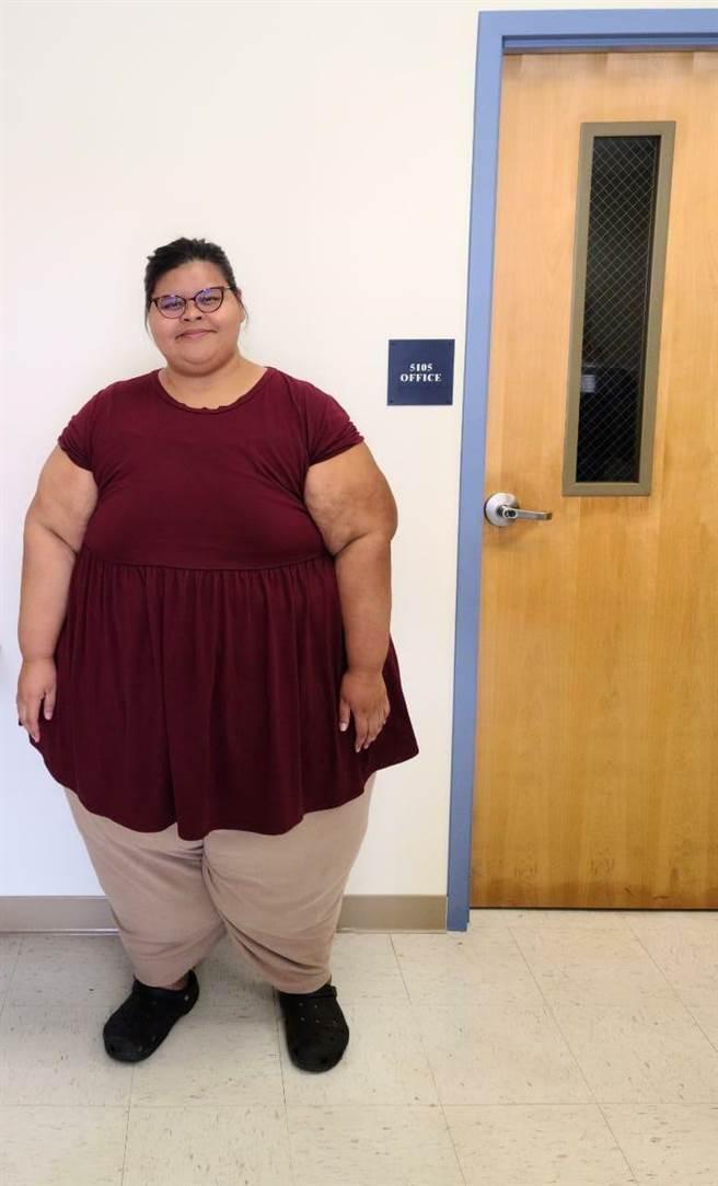 37歲的美國病患拉蒂莎兩年前就計畫來台就醫,因體重過重,其心肺功能不斷惡化。(中國附醫提供/馮惠宜台中傳真)