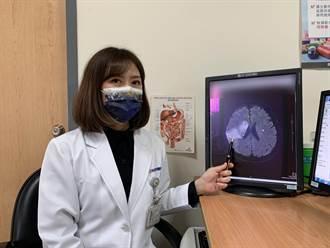 头颈癌患者化疗时突脑中风 颅内动脉取栓保命
