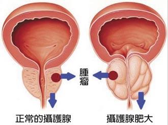 名.醫.問.診-排尿不順要小心 太晚治療後悔莫及 關於攝護腺你一定要注意一些事