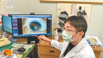 羽球命中右眼 男視力只剩0.1