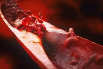 青壯年猝死頻傳  醫:8種救命工具 揪出心血管未爆彈