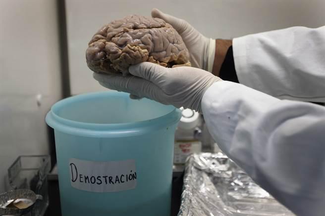 美學界證實,深度睡眠有助於清除大腦有毒蛋白,從而降低阿茲海默症與帕金森氏症的發生。圖為阿茲海默症患者的大腦。(圖/路透社)