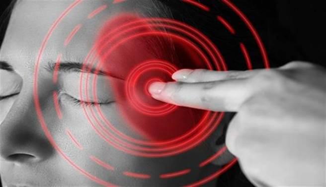28歲腦中風!超大腦動脈瘤,神經介入拆彈解危。(示意圖/Shutterstock)