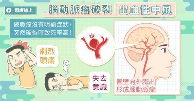 爆炸性頭痛要當心,恐是致死率高的腦動脈瘤。(圖/照護線上提供)
