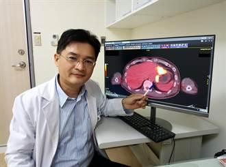 男子四肢無力、食慾差又發燒 正子造影發現腫瘤