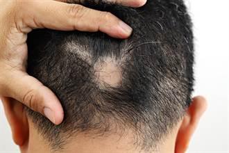 掉髮恐和腸胃有關 超噁新型療法公開 白髮竟變黑髮