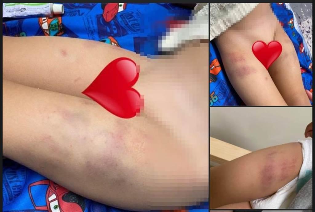 一名男童因想幫忙清潔同學嘔吐物,遭到園長捏大腿捏到瘀青。(擷自靠北惡質幼兒園臉書/邱立雅竹市傳真)