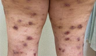 她患異位性皮膚炎乾癢、脫屑難耐 靠這招4個月改善