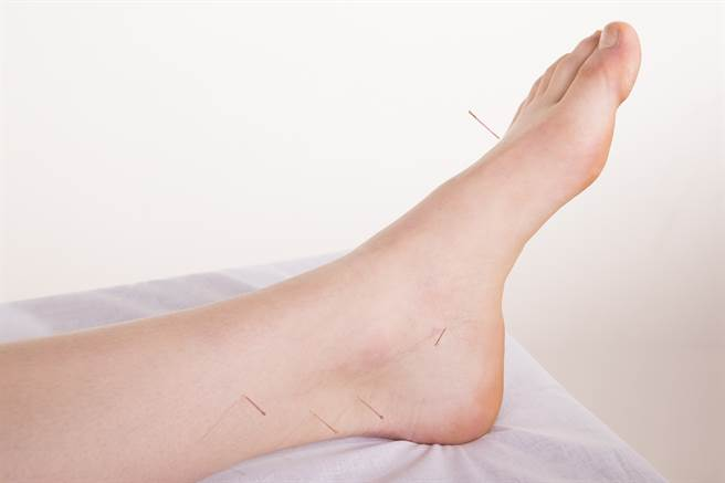 男子某次生病趟床,睡醒竟發現腳上被實習醫師室友偷扎了一針,對方說幫他針灸,但他質疑對方明明是西醫,針灸只是好玩練習的。(示意圖/達志影像/Shutterstock提供)