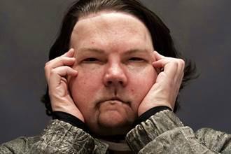 影》全球首例 換臉雙手同步移植成功 80%重度燒傷男獲新生
