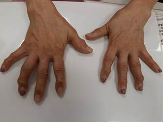 60歲老婦患關節炎手指關節變形 醫:這時間是黃金治療期