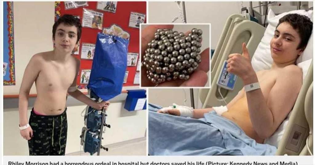 英國男童吞食54顆磁性球實驗,結果被送到醫院進行緊急手術。(圖/翻攝自地鐵報)