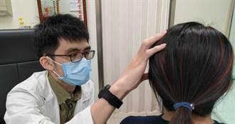 嚴重頭痛影響生活品質 中醫針灸紓緩緊繃感