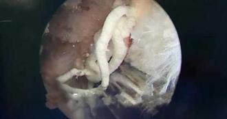 25歲壯男痛風!膝關節擠出「乳白色牙膏」醫嚇傻 驚人原因曝光