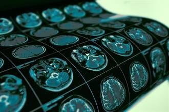 美醫界認證增加痴呆風險達2倍的惡習