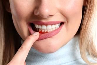 口腔不衛生加重新冠病情 研究:牙周病患者死亡率高9倍