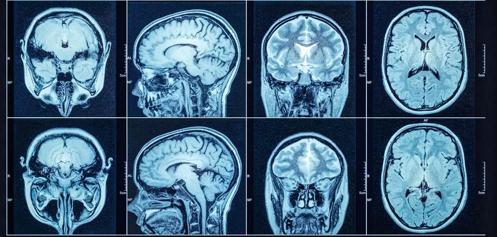 苏格兰爱丁堡大学团队发现,地中海饮食有助于认知能力,增强记忆力与语言能力;不过,这并不是因为饮食法改变大脑结构所使然。达志影像/Shutterstock(photo:ChinaTimes)