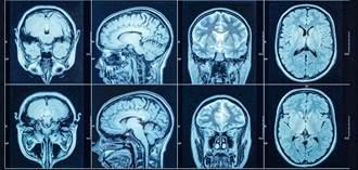 增強記憶力、提升精神敏銳 經學界認證的飲食法