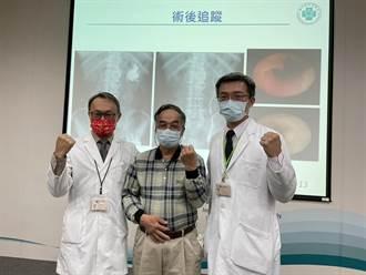 達文西口腔黏膜輸尿管重建患者獲健康