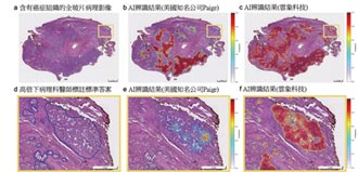 雲象影像AI登上國際科學期刊