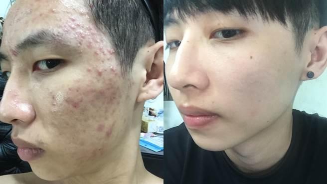 曾歷經八年「戰痘」經驗的抗痘網紅Alan,秀出過往被痘瘡糾纏的慘狀照片。(本人提供)